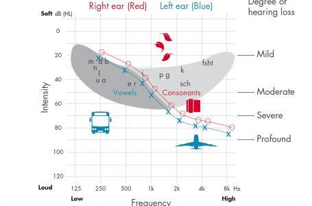 Audiograma, testul care va poate recomanda un aparat auditiv reincarcabil